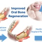improved oral bone regeneration.